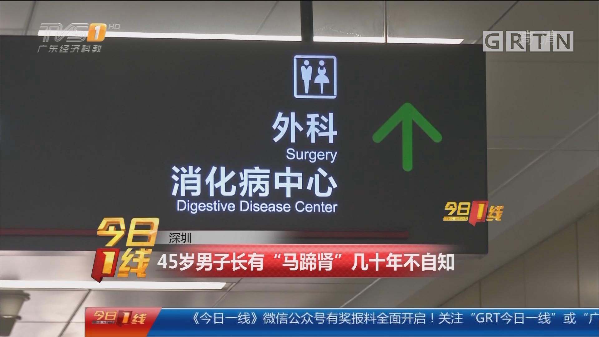 """深圳:45岁男子长有""""马蹄肾""""几十年不自知"""