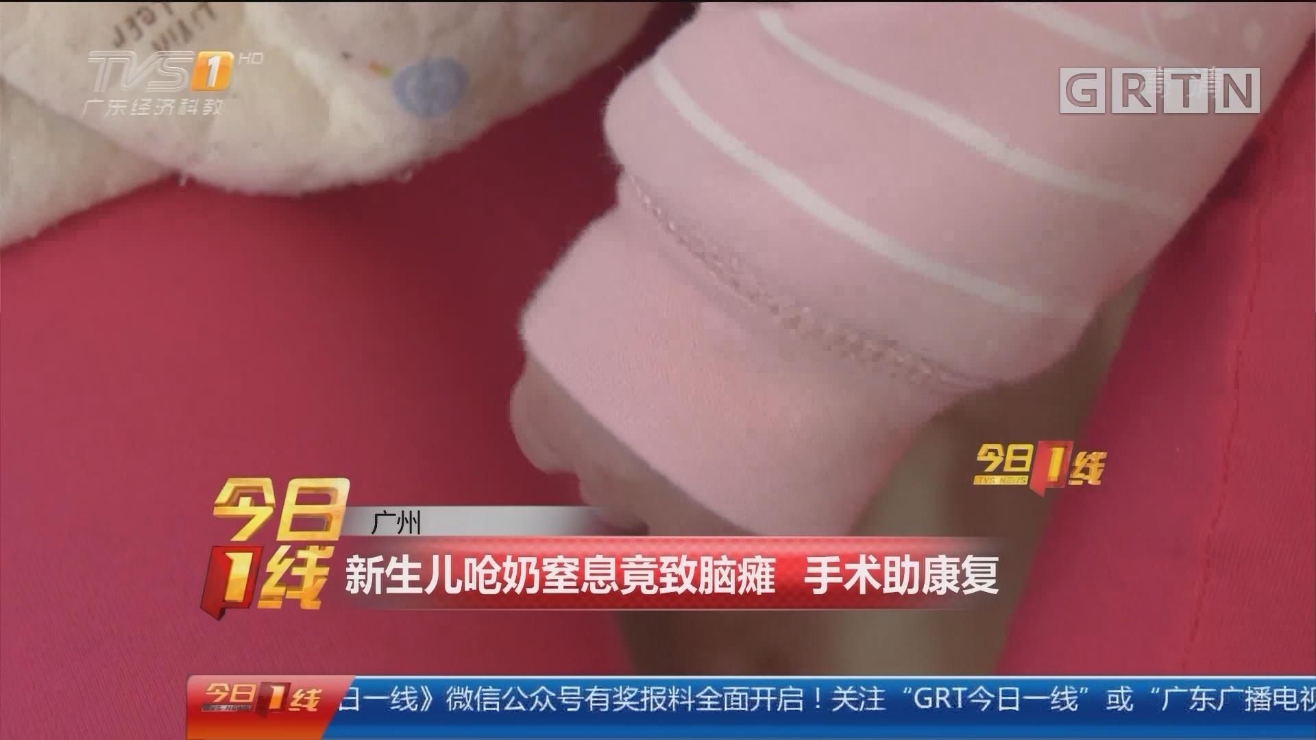 广州:新生儿呛奶窒息竟致脑瘫 手术助康复