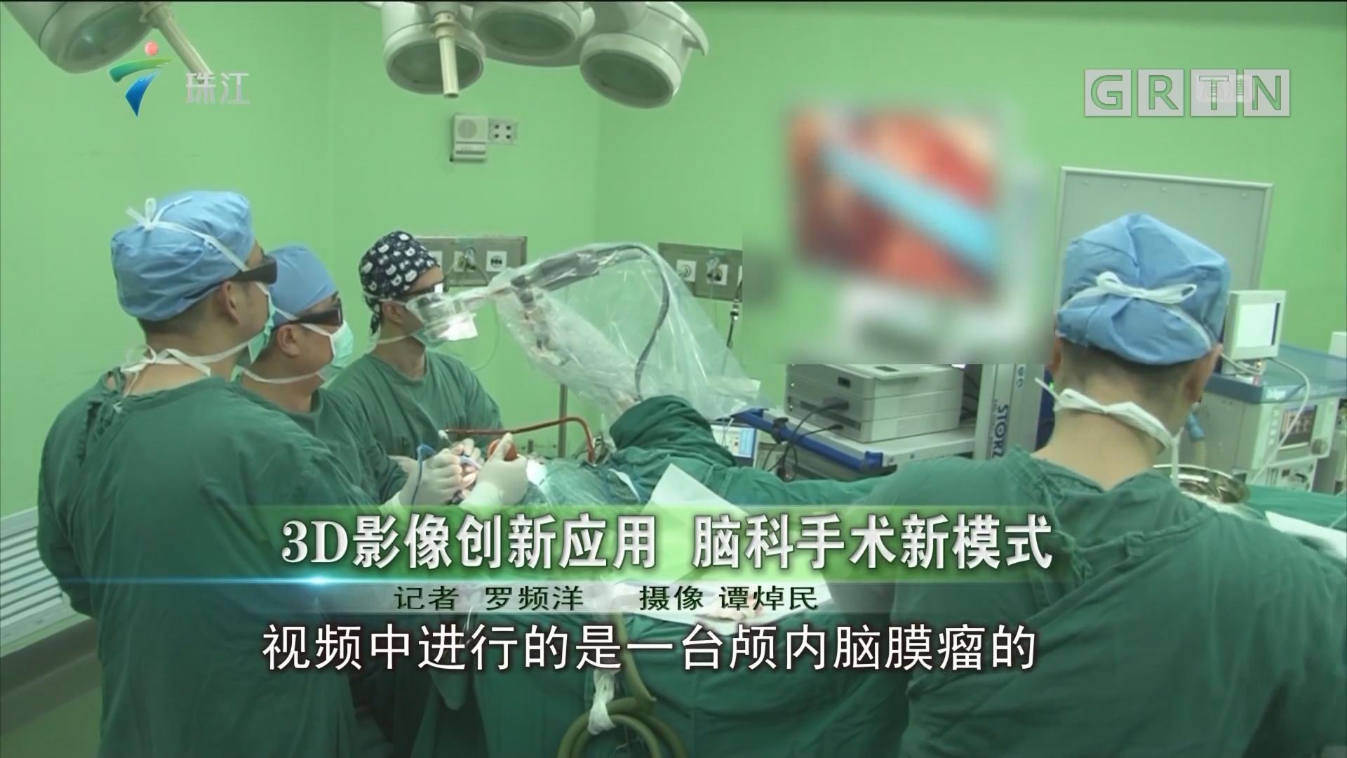 3D影像创新应用 脑科手术新模式