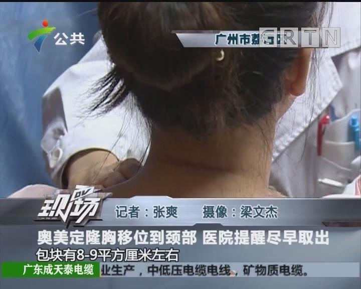 奥美定隆胸移位到颈部 医院提醒尽早取出