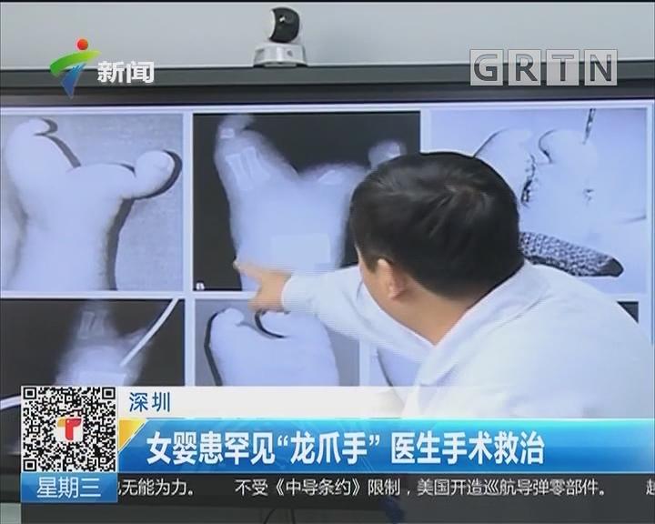 """深圳:女婴患罕见""""龙爪手"""" 医生手术救治"""