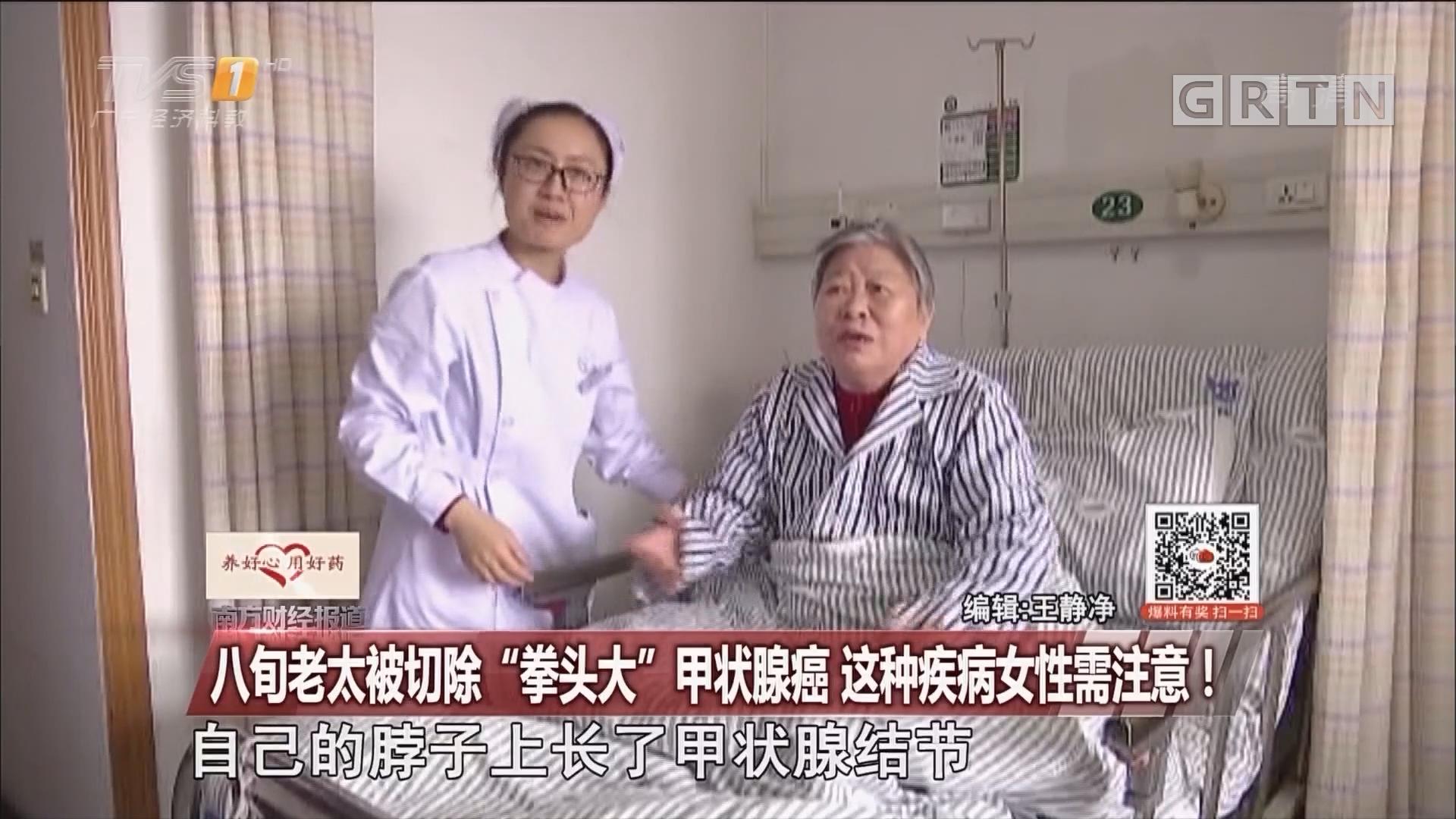 """八旬老太被切除""""拳头大""""甲状腺癌 这种疾病女性需注意!"""