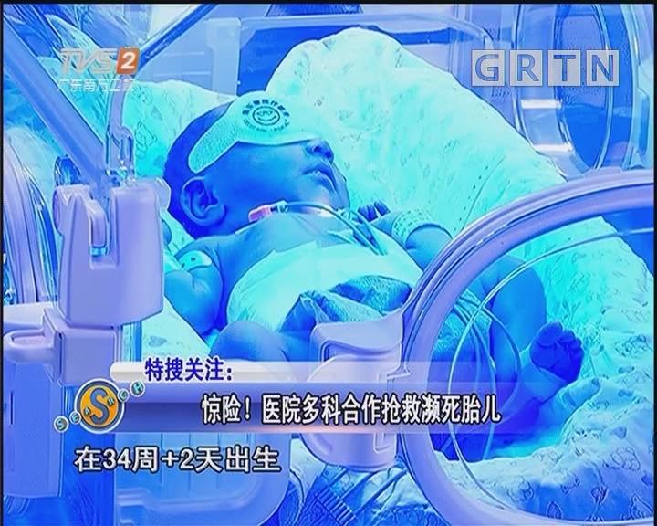 惊险!医院多科合作抢救濒死胎儿