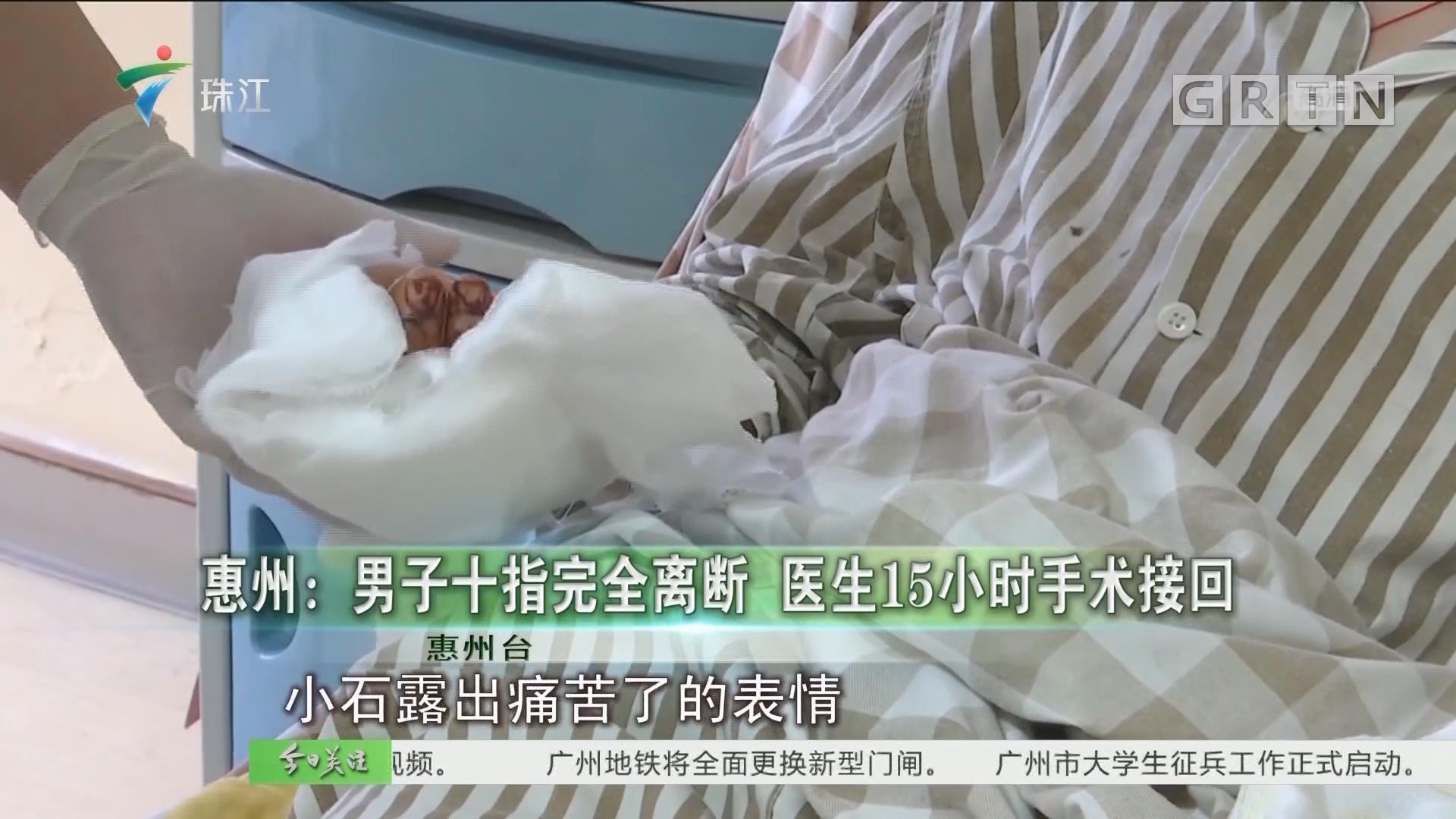 惠州:男子十指完全离断 医生15小时手术接回