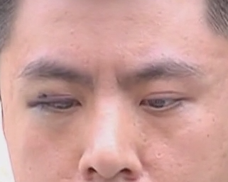 """男子做双眼皮手术 右眼出现""""异常"""""""
