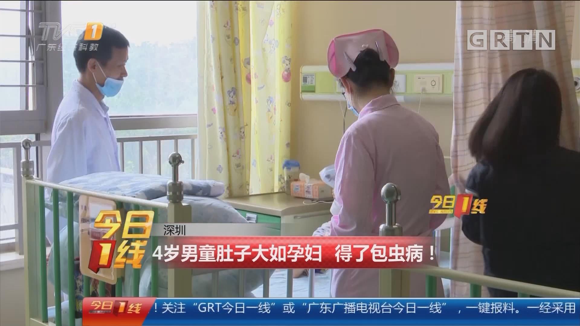 深圳:4岁男童肚子大如孕妇 得了包虫病!