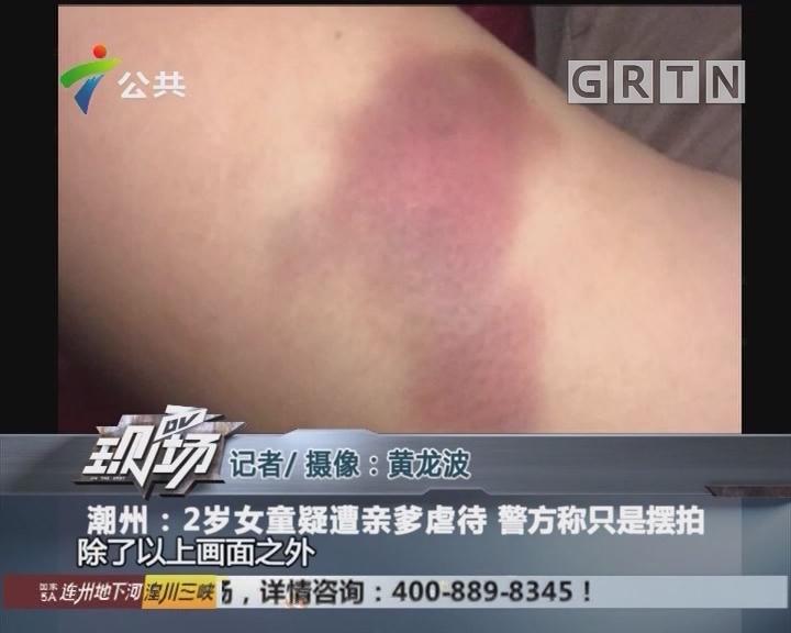 潮州:2岁女童疑遭亲爹虐待 警方称只是摆拍