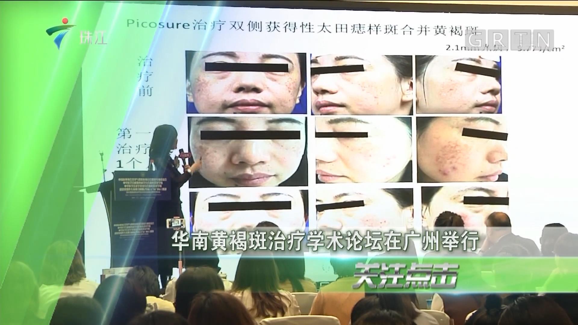 华南黄褐斑治疗学术论坛在广州举行