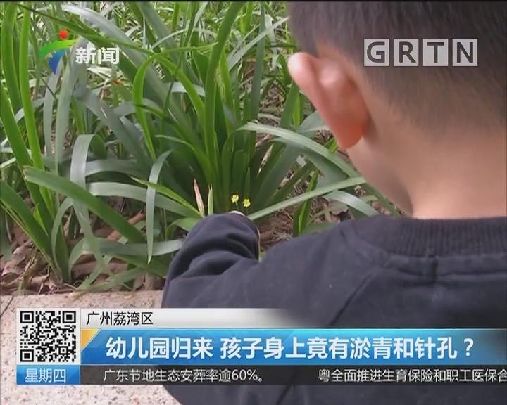 广州荔湾区:幼儿园归来 孩子身上竟有淤青和针孔?