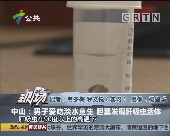 中山:男子爱吃淡水鱼生 胆囊发现肝吸虫活体