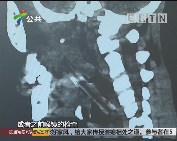 广州:8岁男孩脸藏五厘米树枝 两年未取出