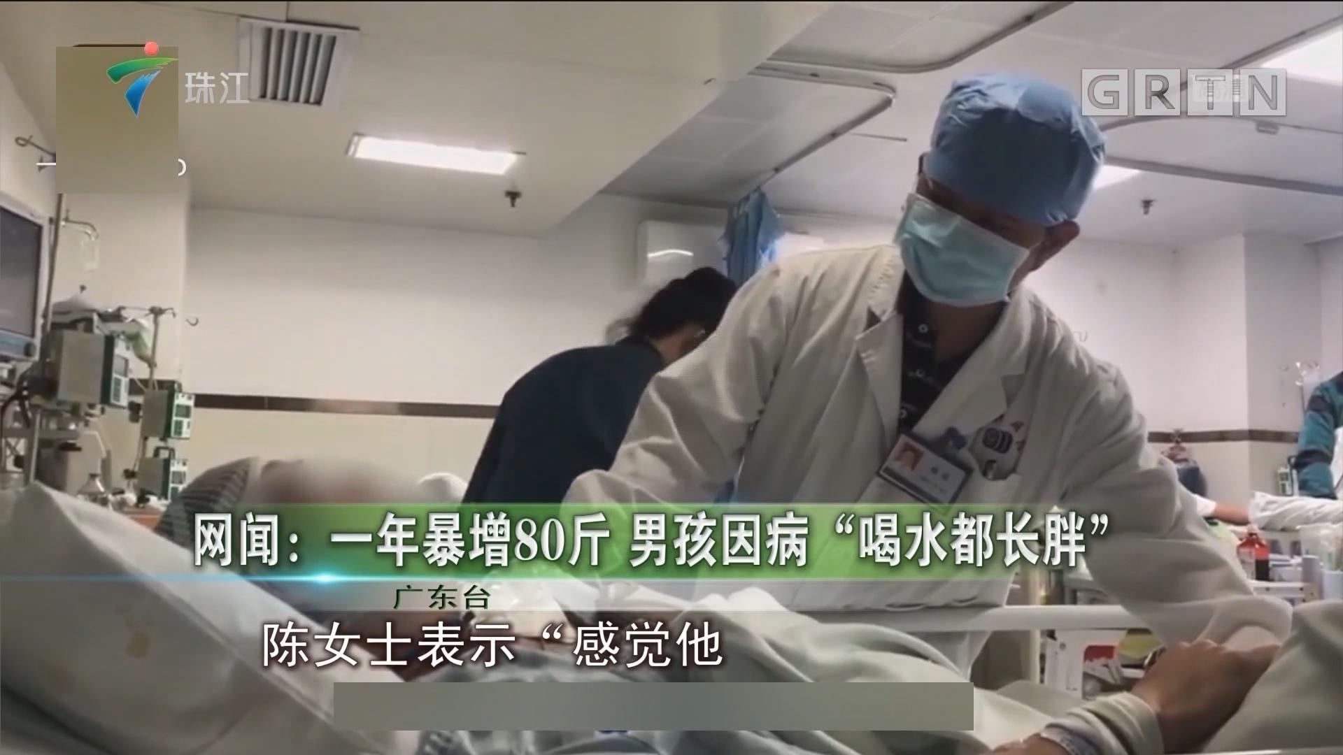"""网闻:一年暴增80斤 男孩因病""""喝水都长胖"""""""