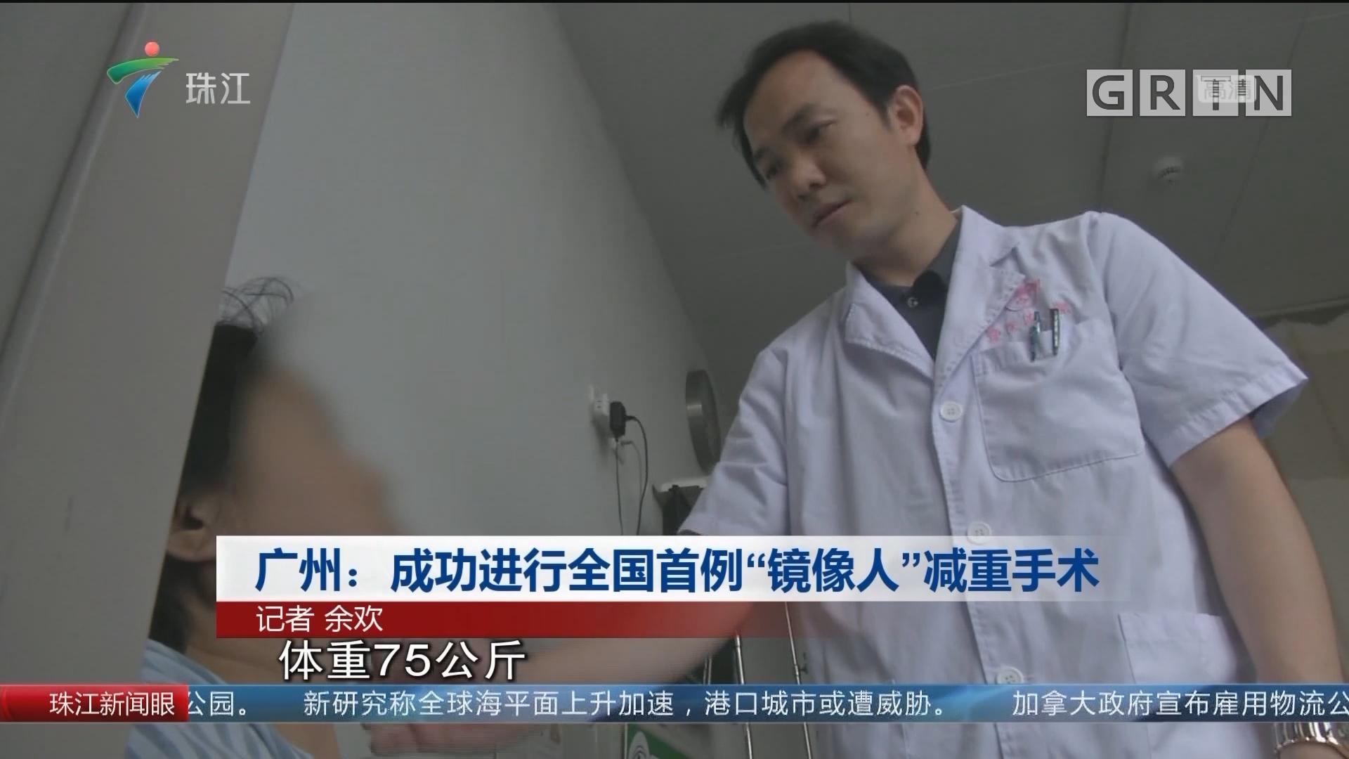 """广州:成功进行全国首例""""镜像人""""减重手术"""