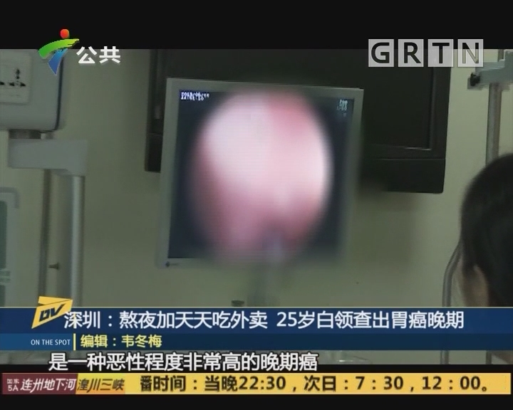 深圳:熬夜加天天吃外卖 25岁白领查出胃癌晚期