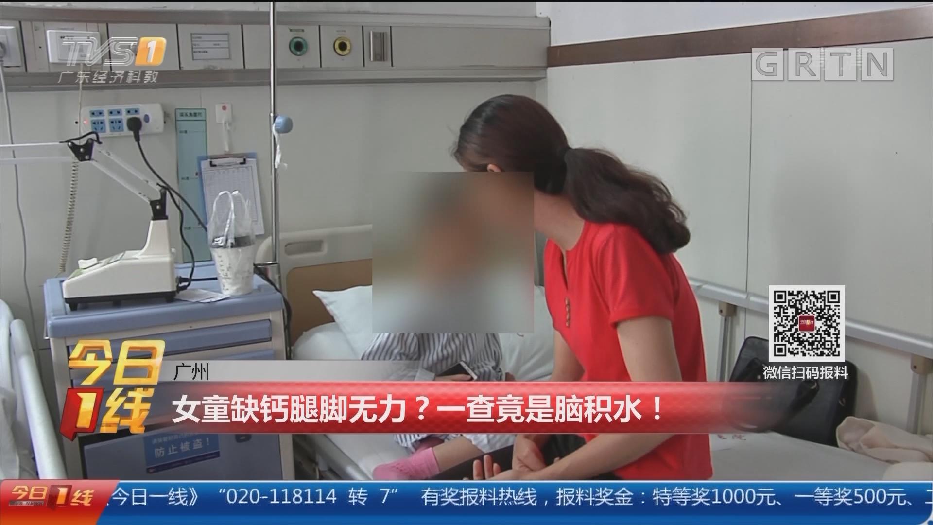广州:女童缺钙腿脚无力?一查竟是脑积水!