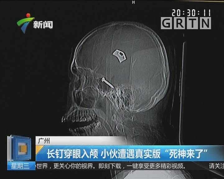 """广州:长钉穿眼入颅 小伙遭遇真实版""""死神来了"""""""