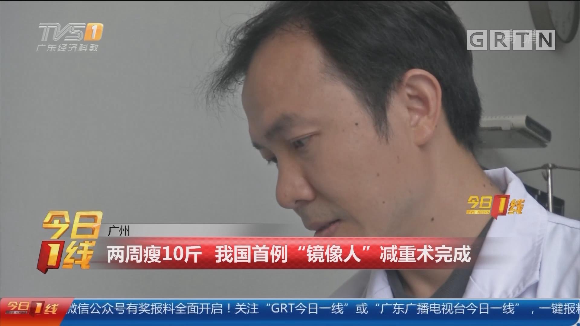 """广州:两周瘦10斤 我国首例""""镜像人""""减重术完成"""