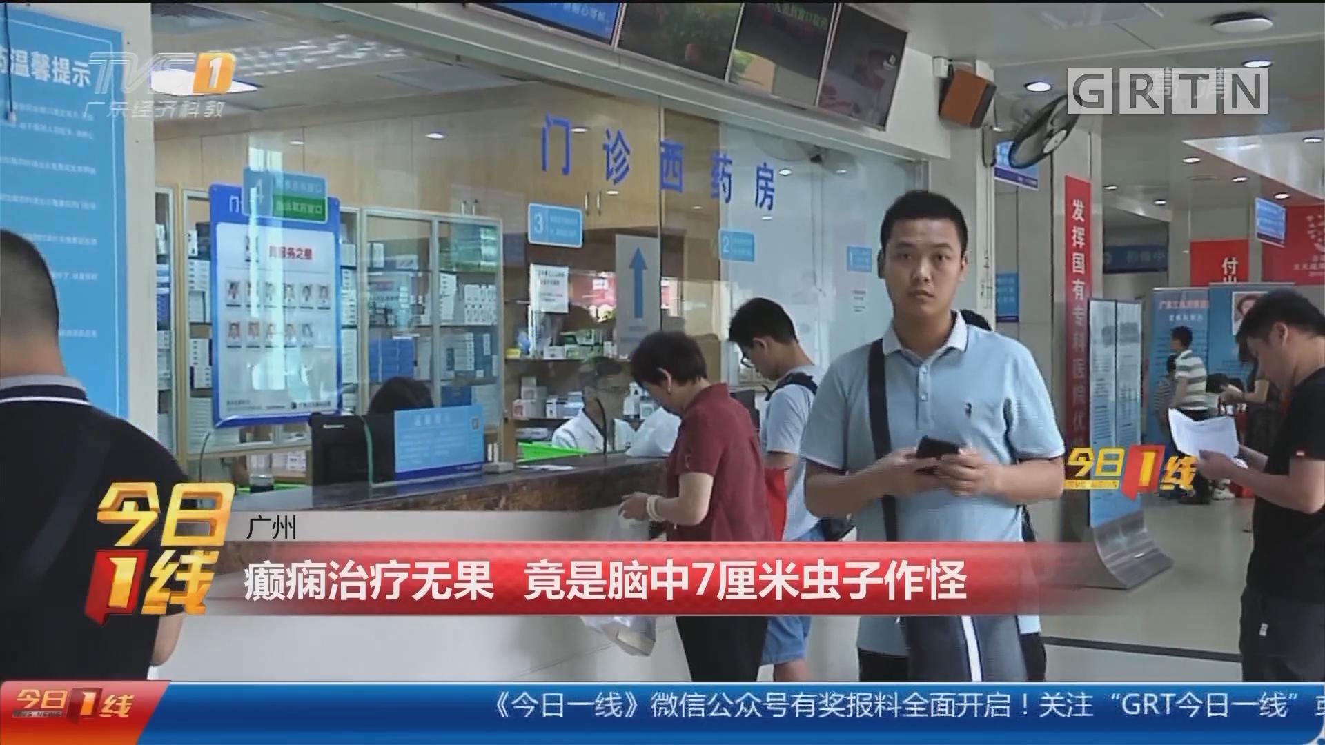 广州:癫痫治疗无果 竟是脑中7厘米虫子作怪