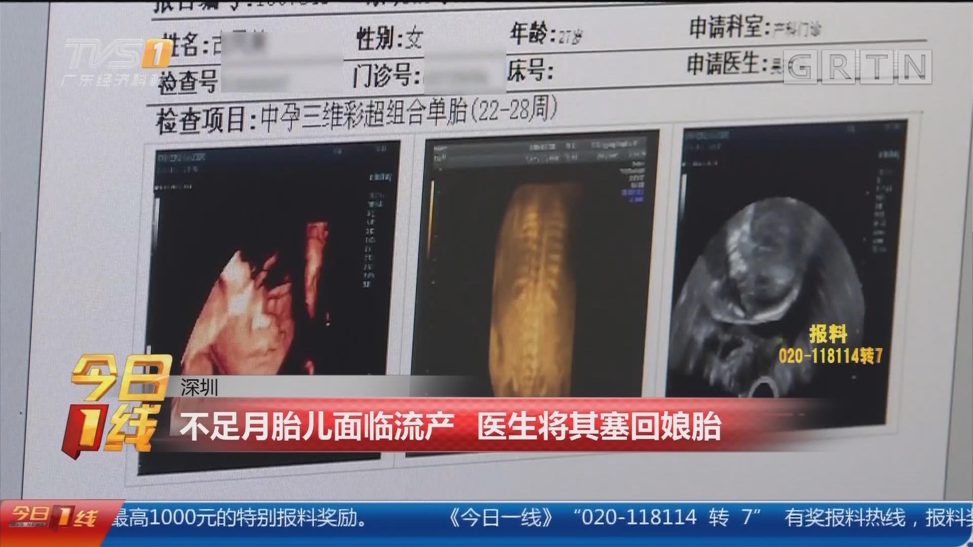 深圳:不足月胎儿面临流产 医生将其塞回娘胎