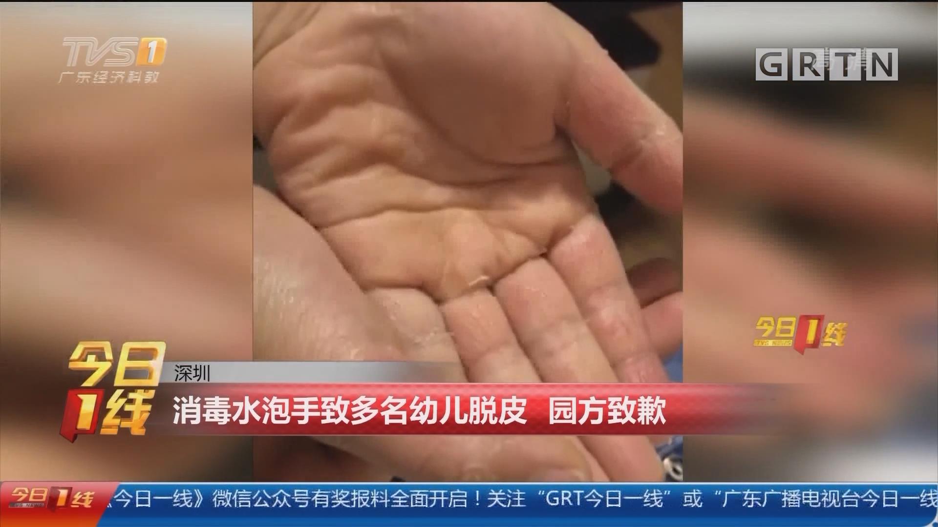 深圳:消毒水泡手致多名幼儿脱皮 园方致歉