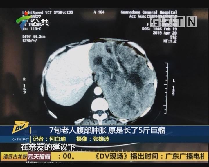7旬老人腹部肿胀 原是长了5斤巨瘤