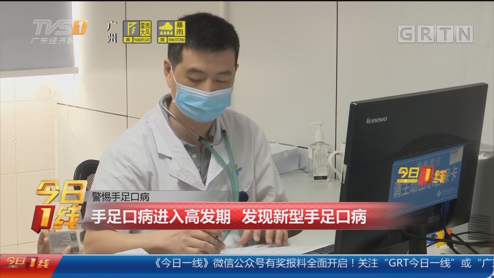 警惕手足口病:手足口病进入高发期 发现新型手足口病