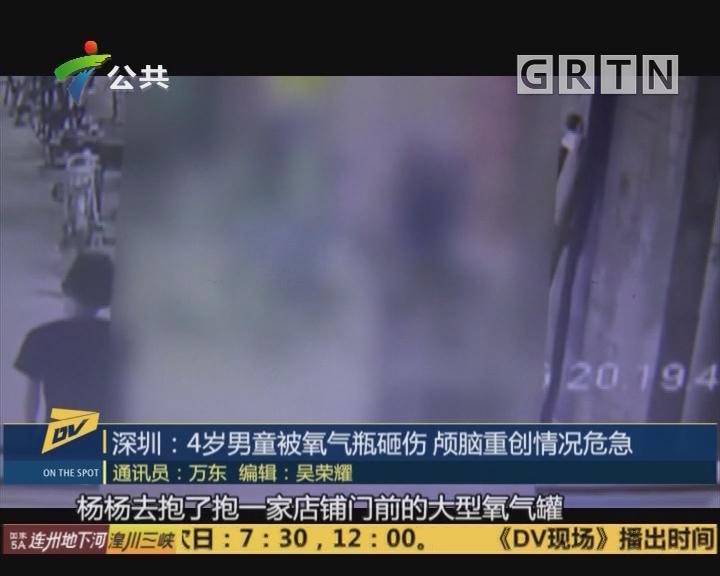 深圳:4岁男童被氧气瓶砸伤 颅脑重创情况危急