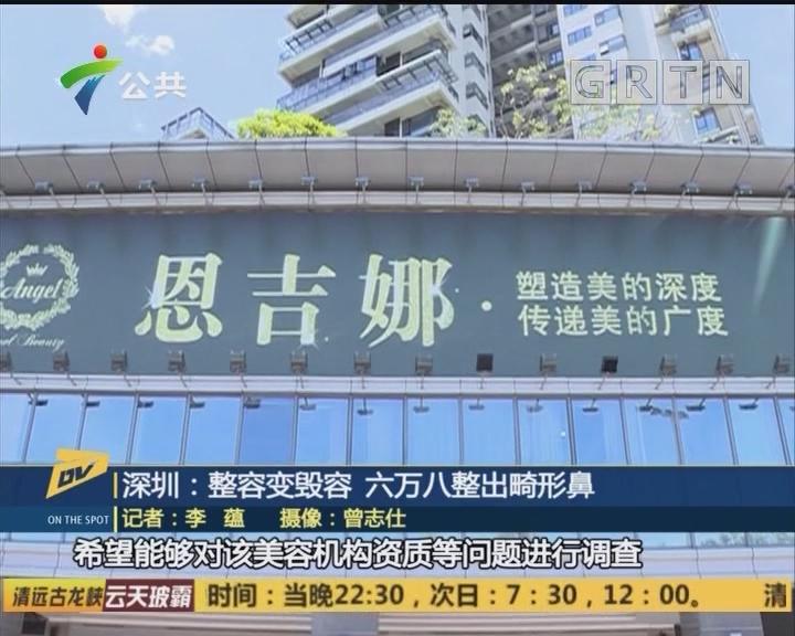 深圳:整容变毁容 六万八整出畸形鼻