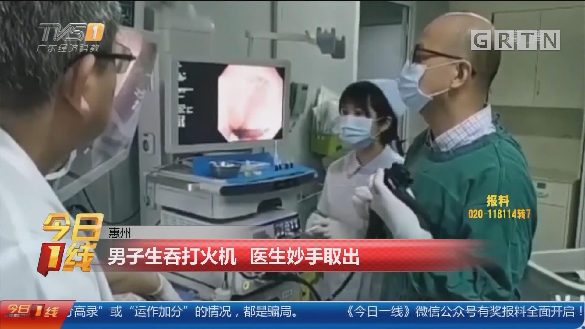 惠州:男子生吞打火机 医生妙手取出