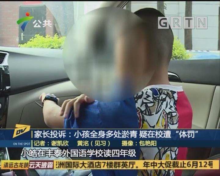 """家长投诉:小孩全身多处淤青 疑在校遭""""体罚"""""""