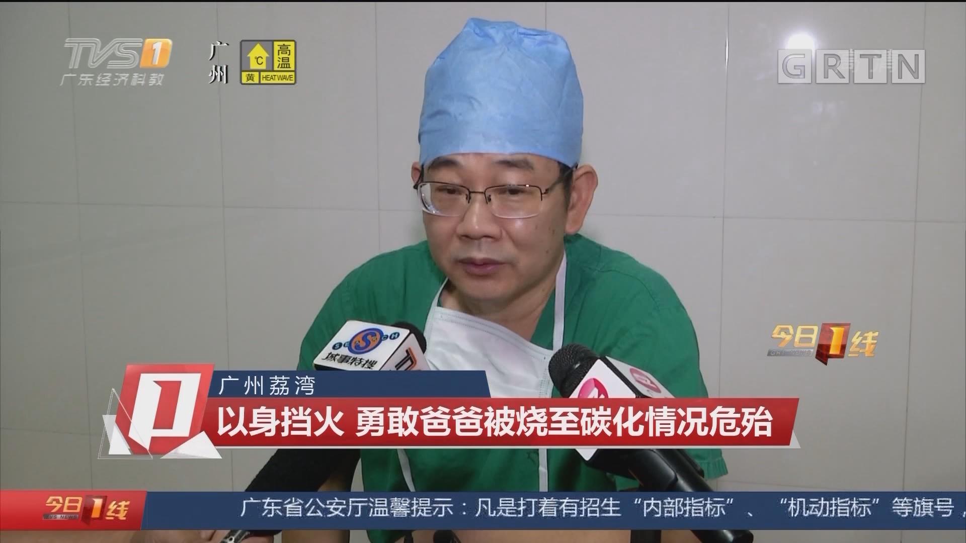 广州荔湾:以身挡火 勇敢爸爸被烧至碳化情况危殆