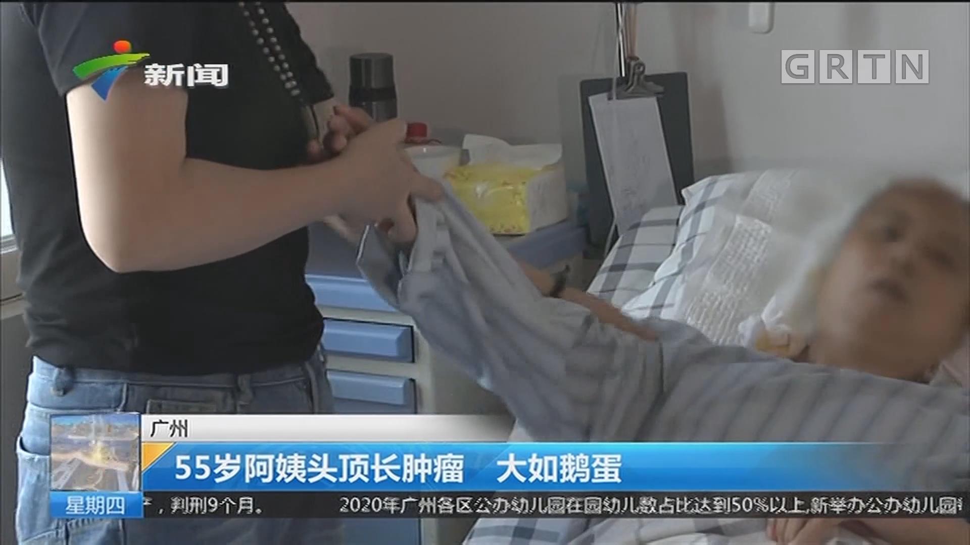 广州:55岁阿姨头顶长肿瘤 大如鹅蛋