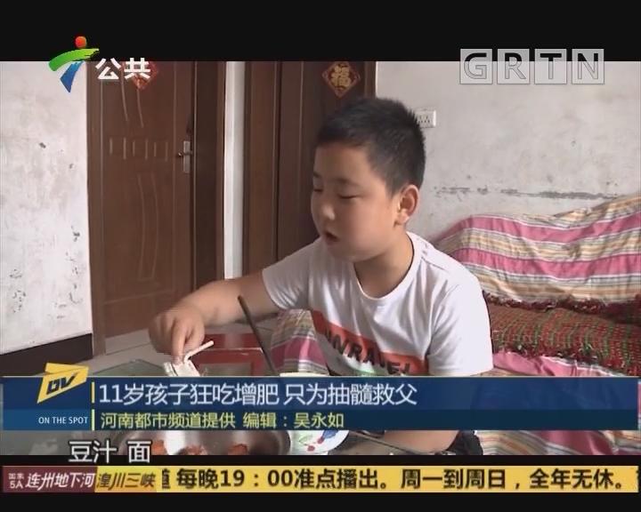 11岁孩子狂吃增肥 只为抽髓救父