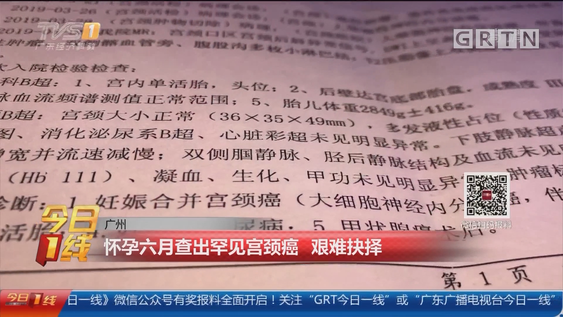 广州:怀孕六月查出罕见宫颈癌 艰难抉择