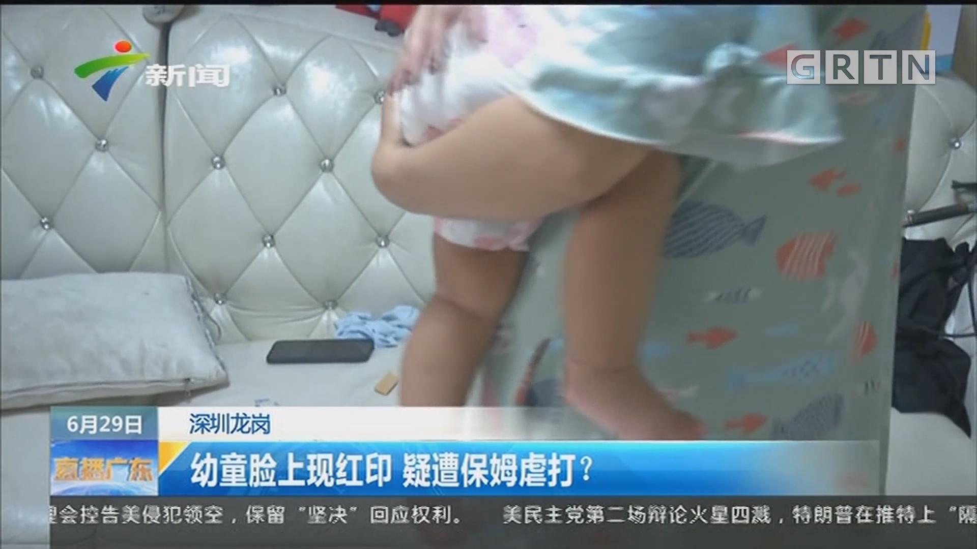 深圳龍崗:幼童臉上現紅印 疑遭保姆虐打?