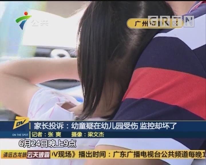 家长投诉:幼童疑在幼儿园受伤 监控却坏了