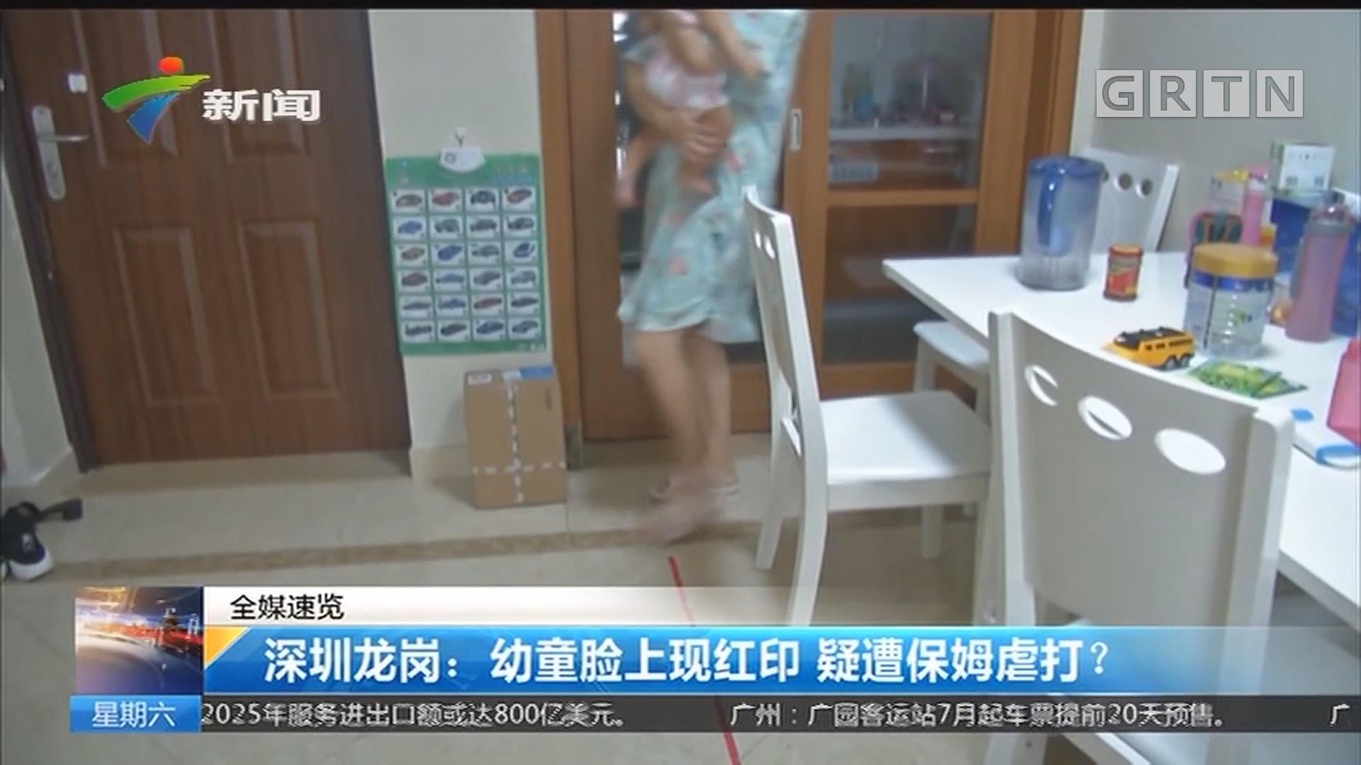 深圳龙岗:幼童脸上现红印 疑遭保姆虐打?