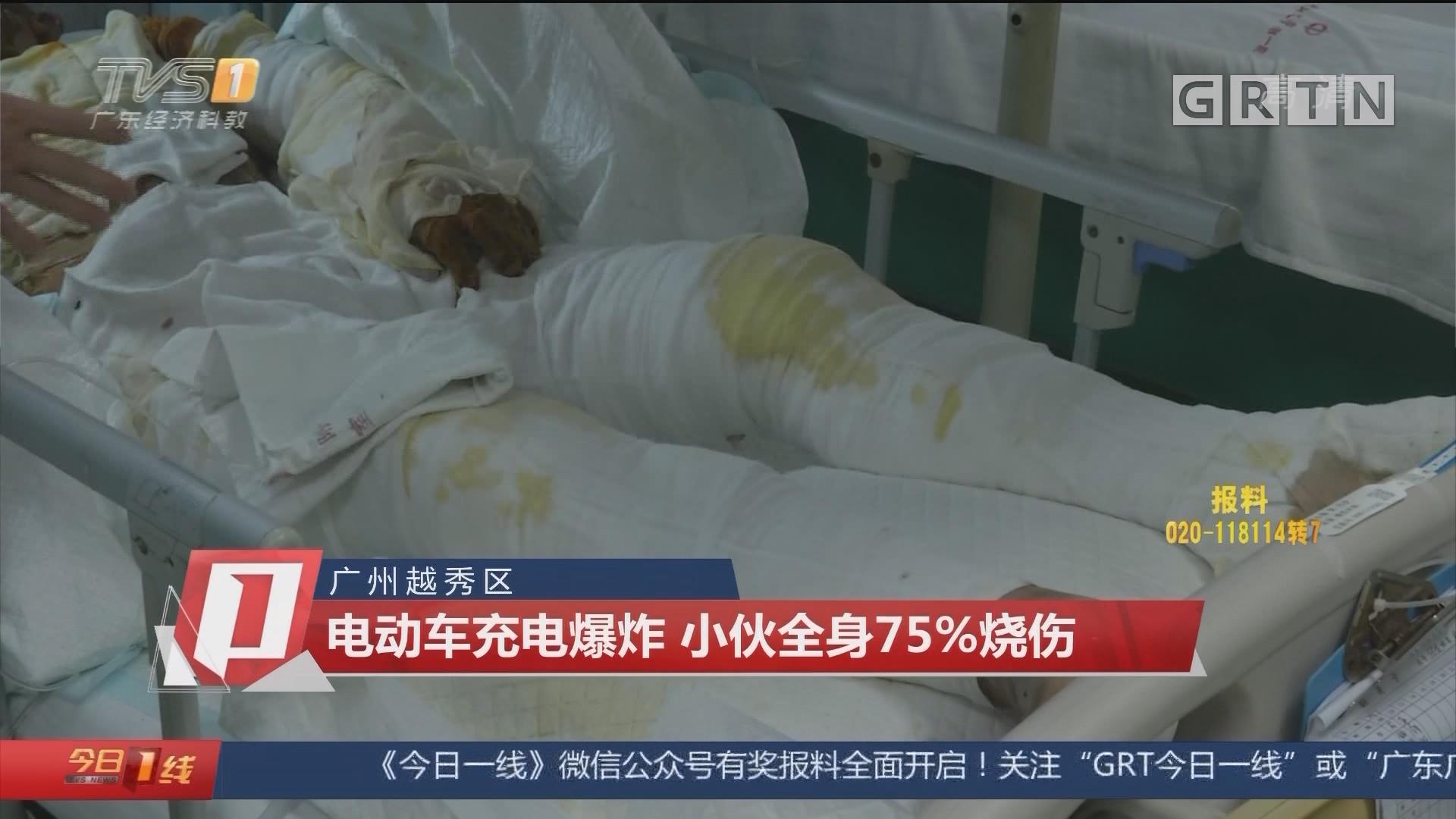 广州越秀区:电动车充电爆炸 小伙全身75%烧伤