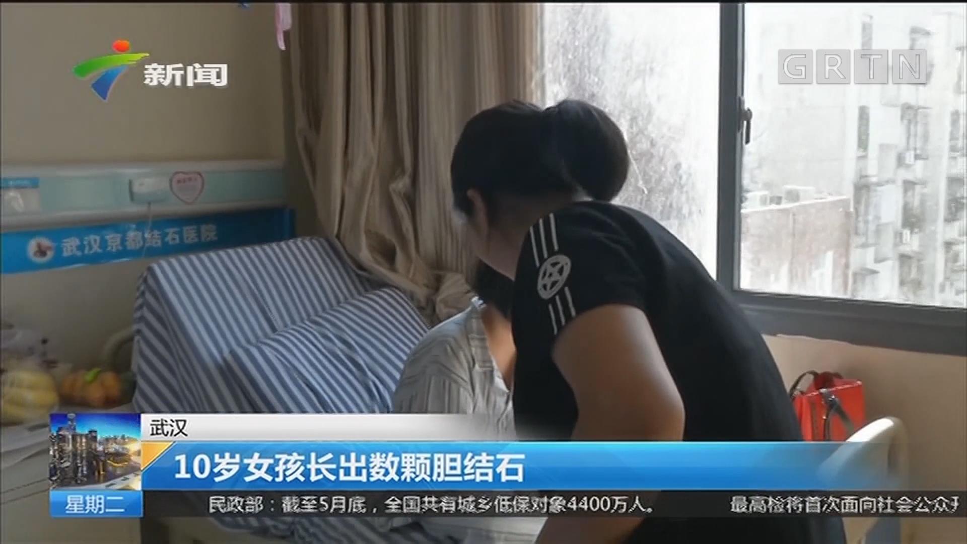 武汉:10岁女孩长出数颗胆结石