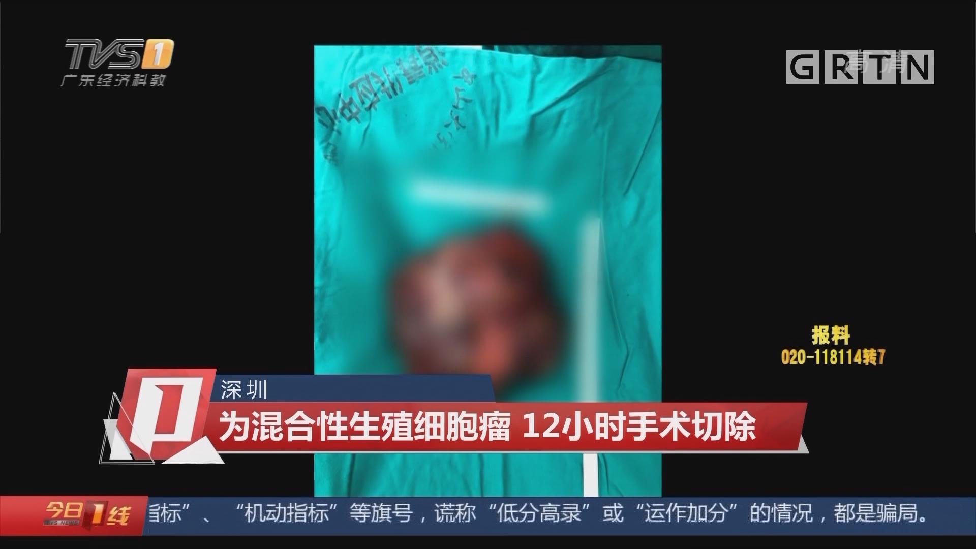 """深圳:小伙胸腔長腫瘤 一個月""""橘""""變""""柚"""""""