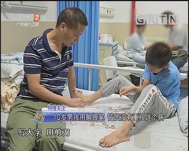 10岁男孩用脚握笔 皆因没有重视这个病