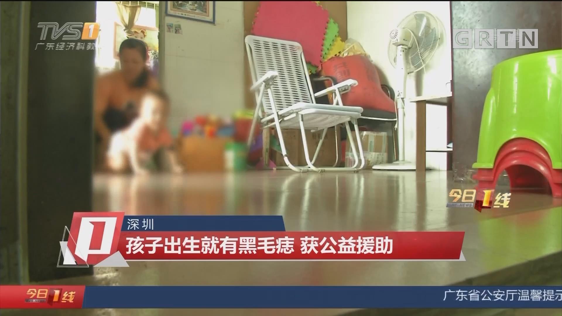 深圳:孩子出生就有黑毛痣 获公益援助