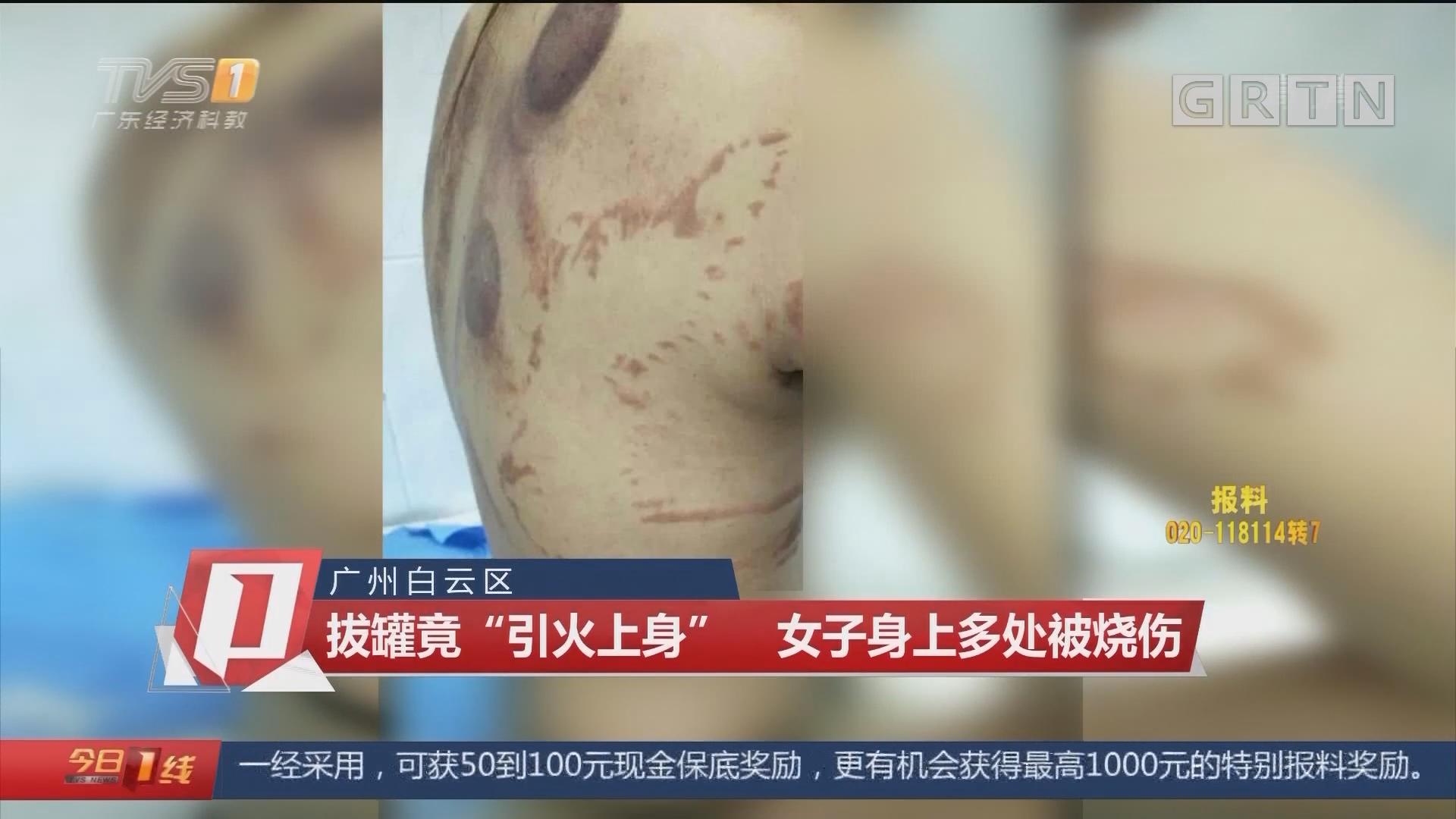 """廣州白云區:拔罐竟""""引火上身"""" 女子身上多處被燒傷"""