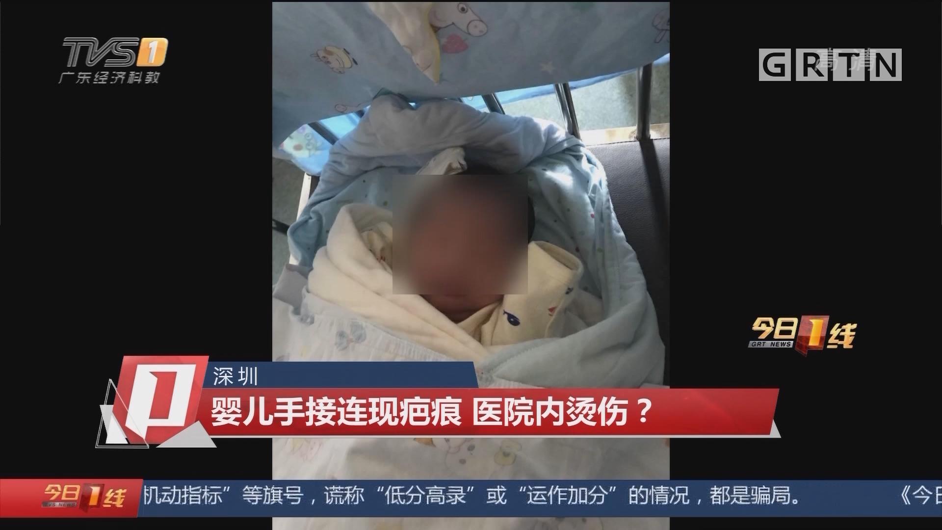 深圳:婴儿手接连现疤痕 医院内烫伤?