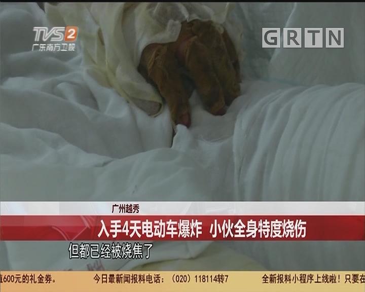 廣州越秀:入手4天電動車爆炸 小夥全身特度燒傷