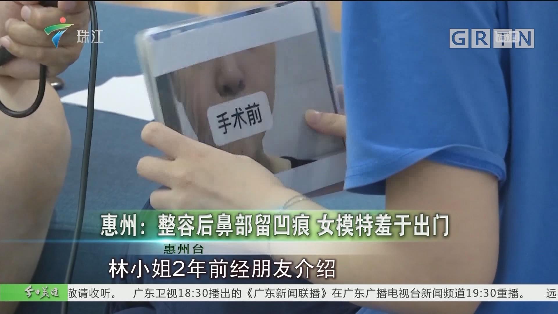 惠州:整容后鼻部留凹痕 女模特羞于出门