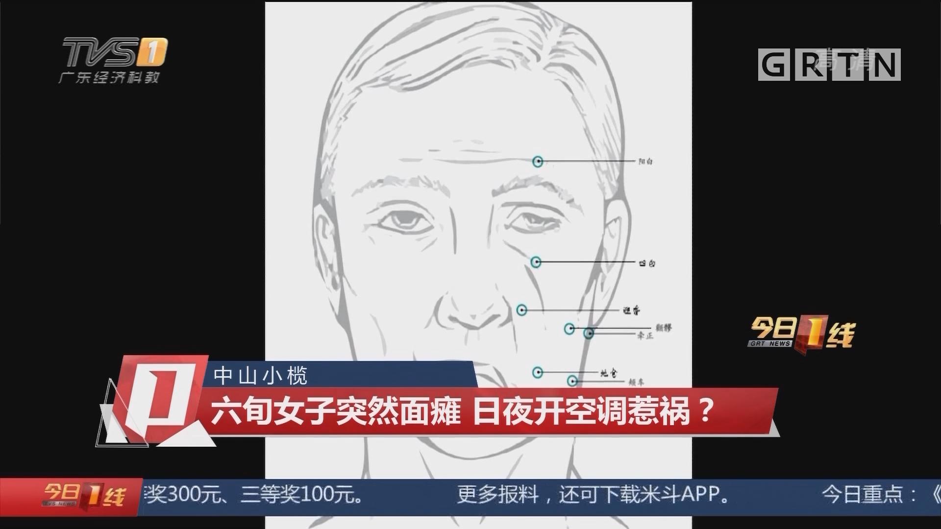 中山小榄:六旬女子突然面瘫 日夜开空调惹祸?