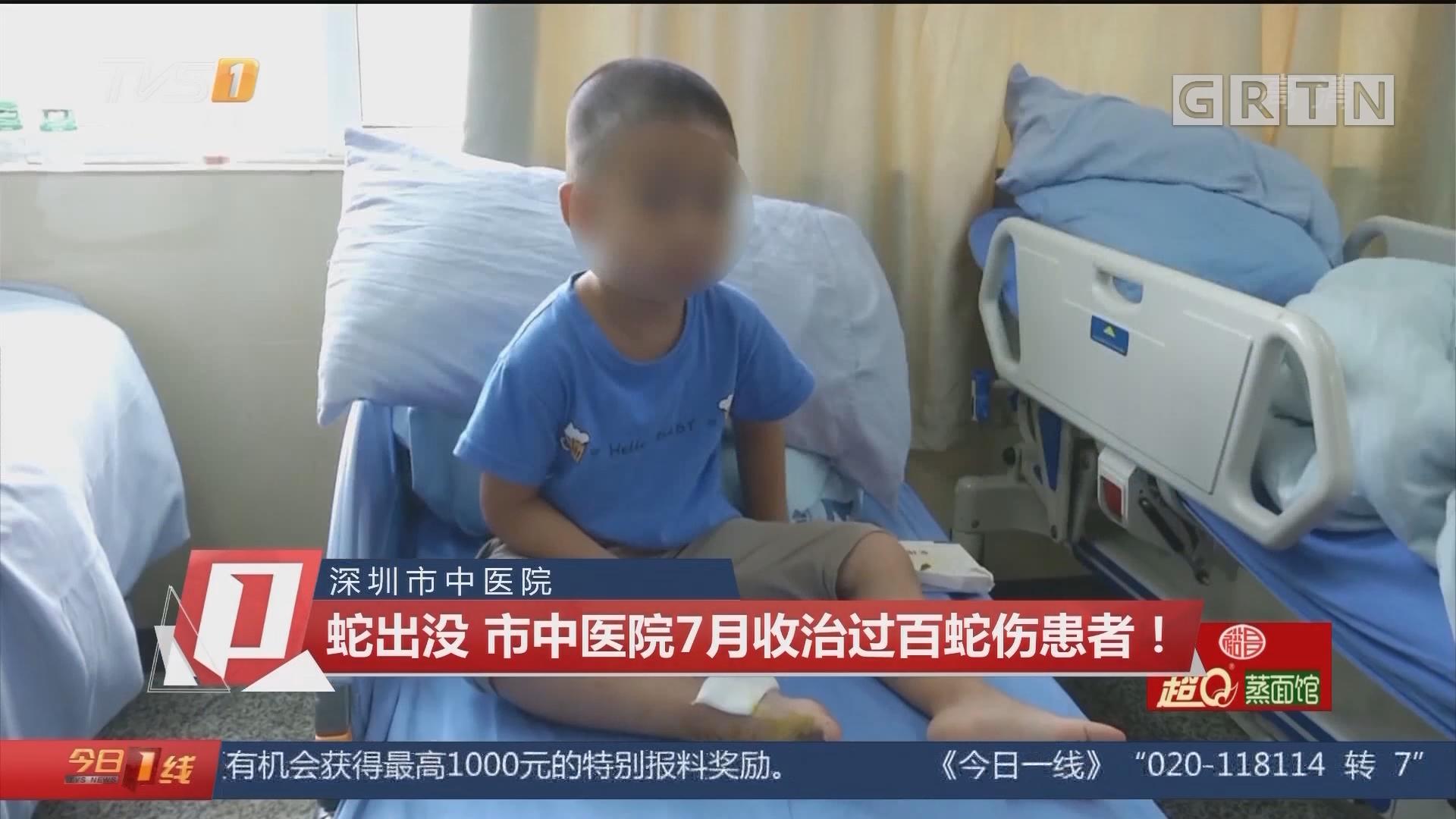 深圳市中医院:蛇出没 市中医院7月收治过百蛇伤患者!
