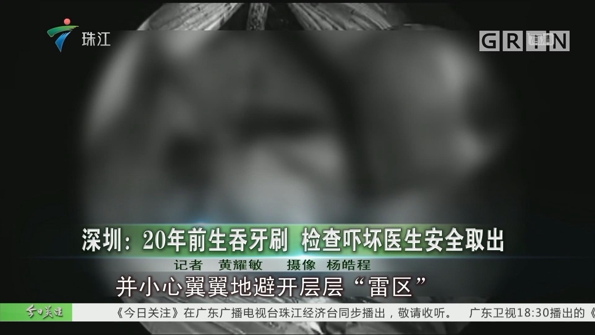 深圳:20年前生吞牙刷 检查吓坏医生安全取出