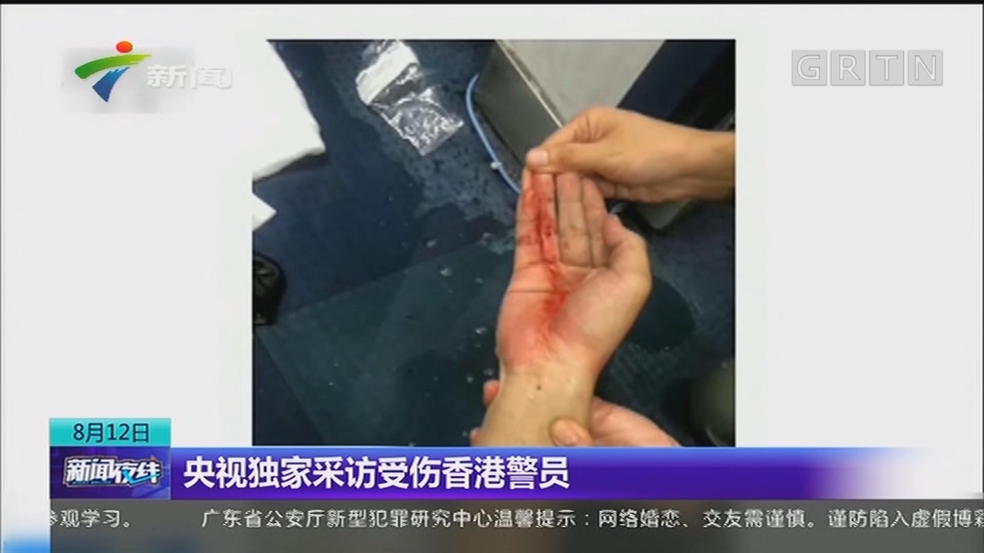央视独家采访受伤香港警员